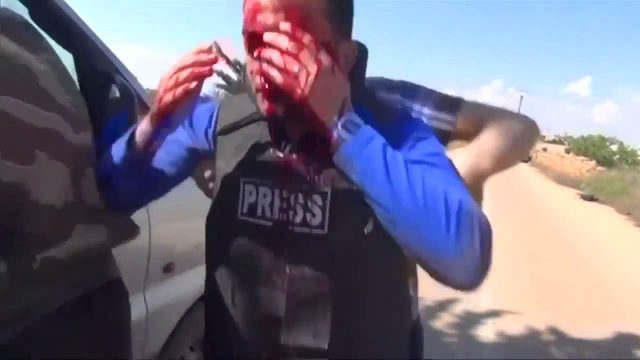 Bloke On TV Gets Hit By Shrapnel During An Airstrike