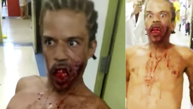 Terrifying Footage Shows 'Zombie Man' In Hospital After Being Shot In The Face