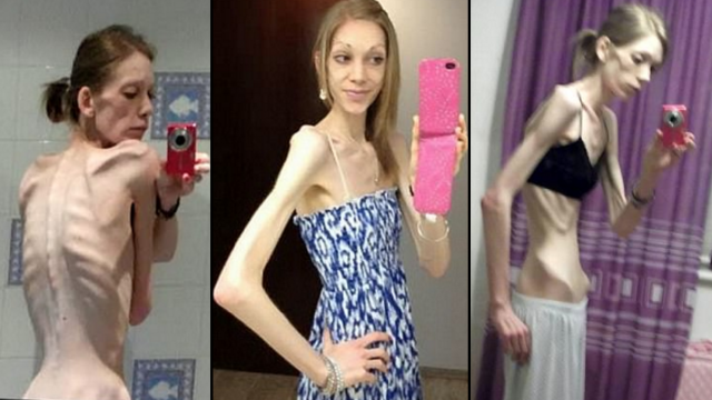 This Former Anorexic Girl Just Won A Bodybuilding Competition