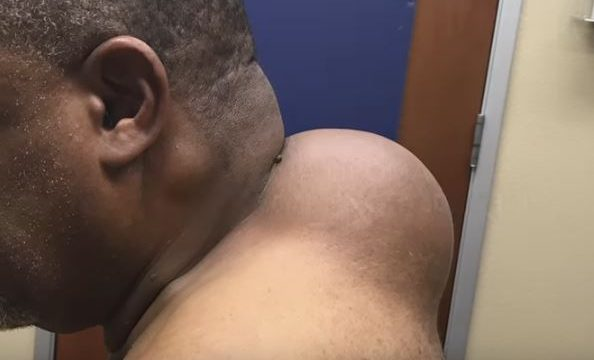 Man Gets Bowling Ball Sized Lipoma Removed By Dr Pimple Popper