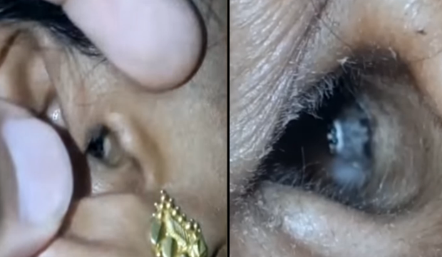 WATCH: The Cheeky Moment A Spider Crawls Out Of A Woman's Ear