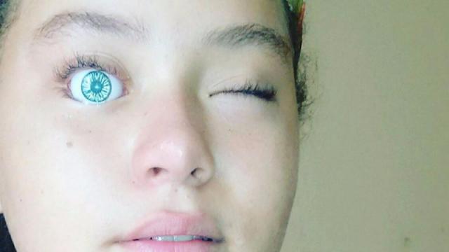 Girl Puts Doll's Eye Into Her Own Eye Socket, Immediately Regrets Decision