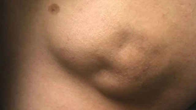 "Dr Pimple Popper Attacks ""Baby Face"" Looking 50 Year Old Cyst"