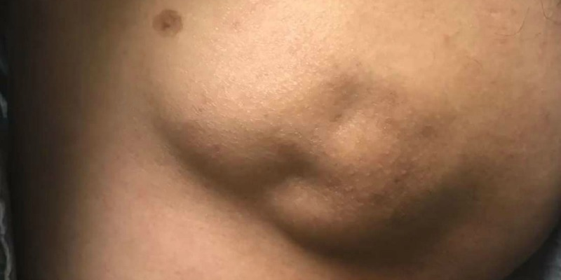 """Dr Pimple Popper Attacks """"Baby Face"""" Looking 50 Year Old Cyst"""