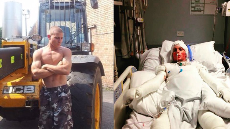 Bloke Who Survived Severe Burns Now Rocks This Awesome Costume At Parties
