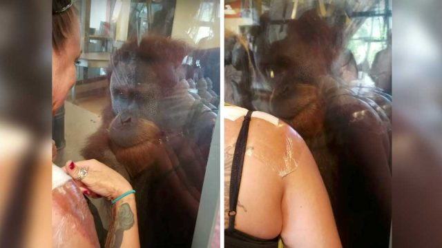 Touching Moment When An Orangutan Meets a Burn Victim At The Zoo