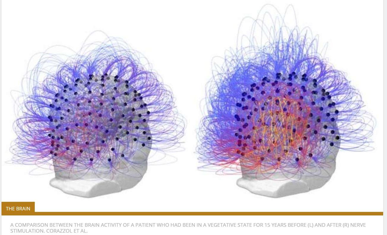 Credit: IFLScience/Corrazol et al