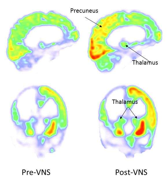 Brain activity before and after vagus nerve stimulation. Credit: IFLScience