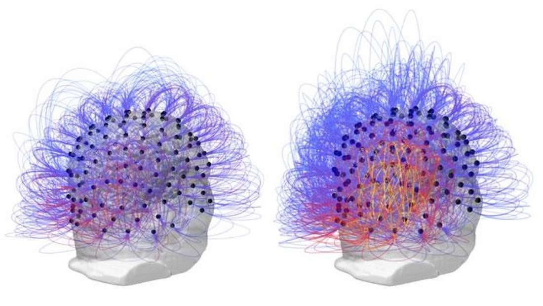 Researchers Restore Consciousness In Man After 15 Years In Vegetative State