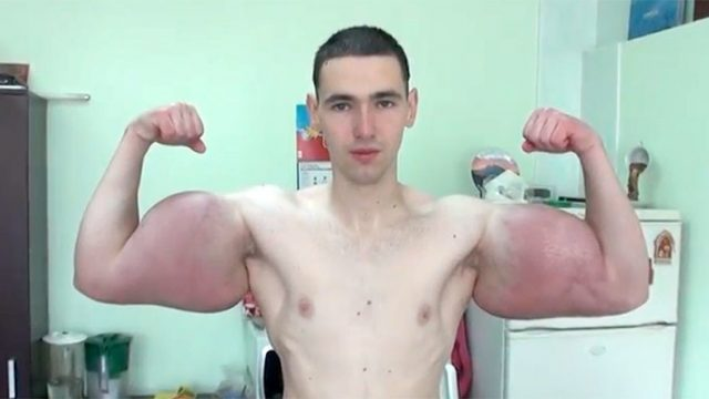 Bloke Shows Off Brand New Synthol-Enlarged Biceps
