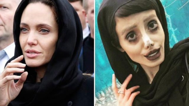 Teenager Has 50 Cosmetic Procedures In Attempt To Look Like Angelina Jolie