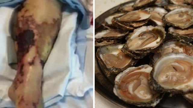 Woman Killed From Flesh-Eating Bacteria After Eating 24 Raw Oysters