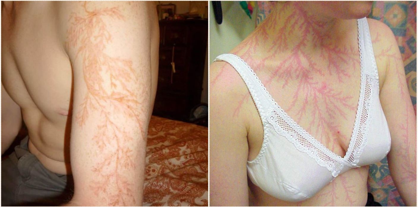 Some lucky bastards who survived lightning strikes have shown what it does to your skin