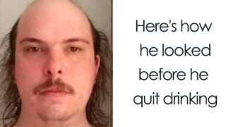 The difference sobriety makes: ten pics of people post-alcoholism