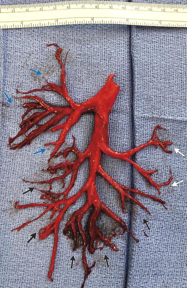 The blood-clot. Credit: NEJM