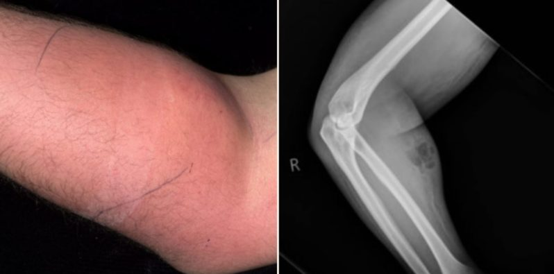 Bloke ends up in hospital after injecting semen to cure back pain