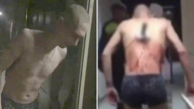 Shirtless Russian bloke with knife in back leaves hospital for a durry in the freezing