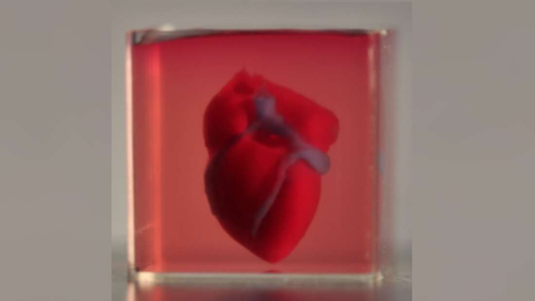 Scientists have created world's first 3D-printed heart using patient's own cells