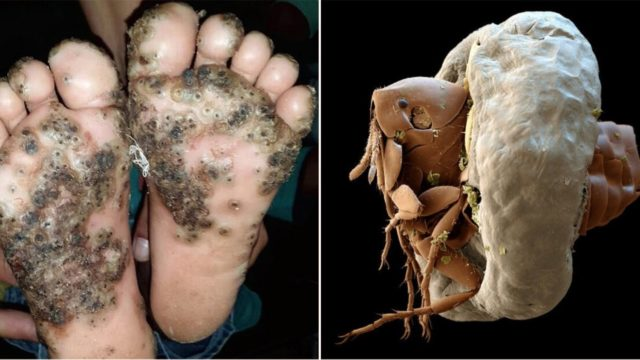 Girl catches gruesome infection on her feet after not wearing shoes in rural Brazil