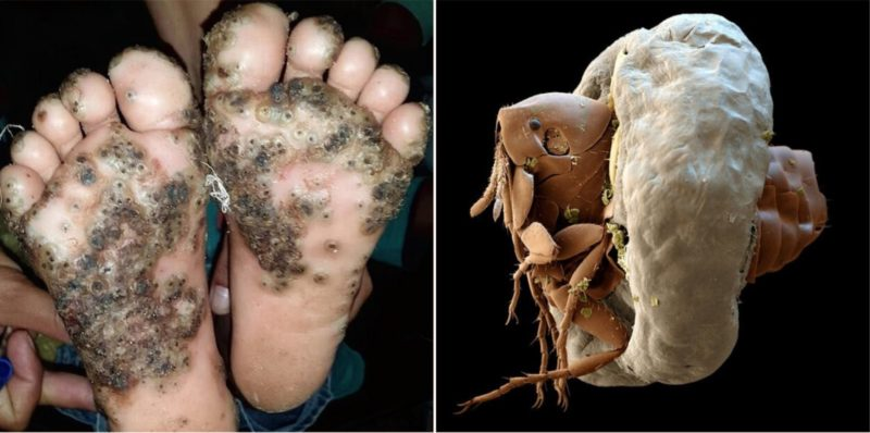 Girl Catches Gruesome Infection On Her Feet After Not Wearing