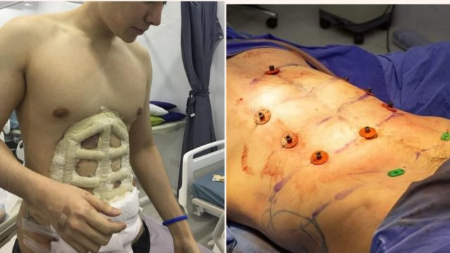 This Hospital is offering instant six-pack surgery and it's pretty f**ken weird