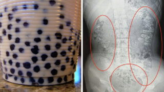 Teen in China allegedly has 100+ undigested bubble tea pearls inside her
