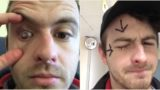 Bloke goes blind in one eye from showering with contact lenses in