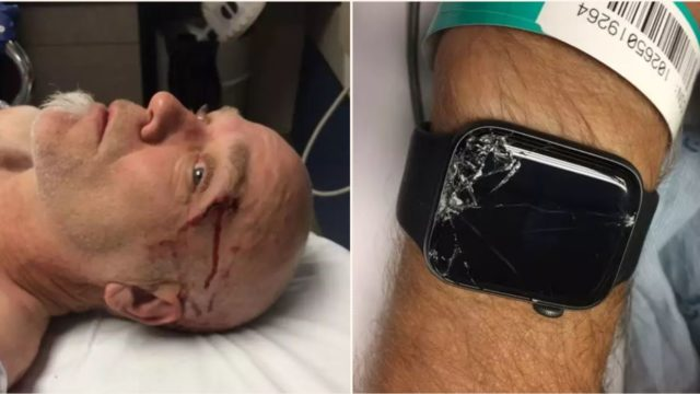 Bloke left unconscious and alone in the woods until Apple Watch saved his life