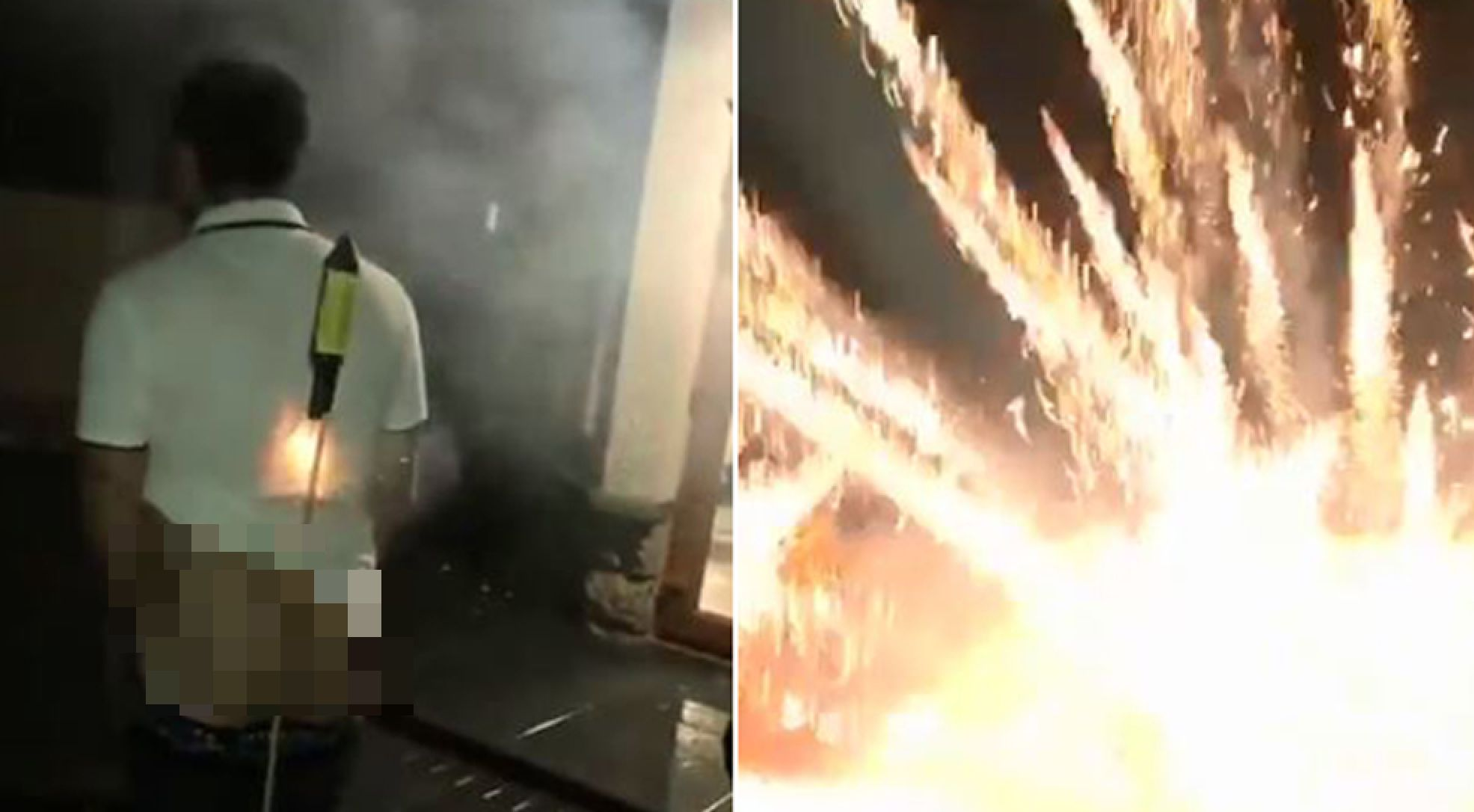 Bloke tries to shoot fireworks from his bum cheeks; regrets it