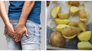Doctors are warning people to not put frozen potatoes in their anus