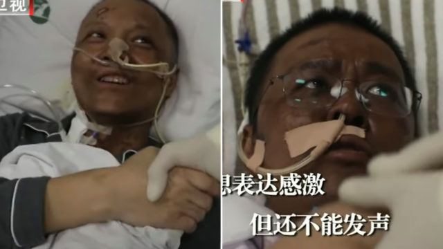 Chinese Doctors' skin turned dark after Covid-19 recovery