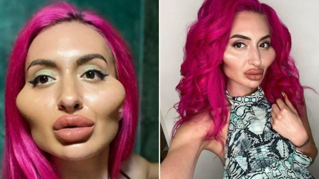 Sheila with extreme cheek-fillers reckons she's getting more blokes than ever before
