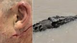 """He had puncture marks on his head"": Bloke escapes jaws of crocodile"