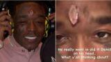 Rapper Lil Uzi Vert gets a $24 million diamond pierced to his forehead