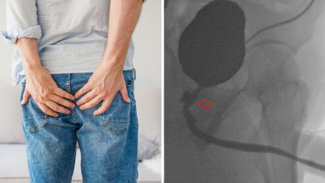 Rare condition causes bloke to poo from his penis and ejaculate semen from his butt